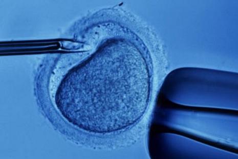 英國通過「三親」胚胎技術,主教稱影響深遠令人擔憂