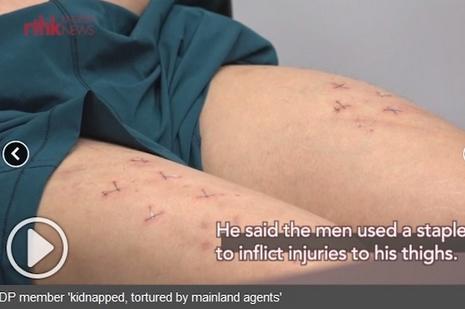 政界基督徒聲稱因關注劉霞遭虐待,卻被公眾廣泛質疑 thumbnail